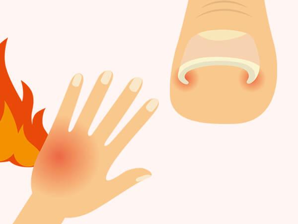 皮膚外科・形成外科疾患