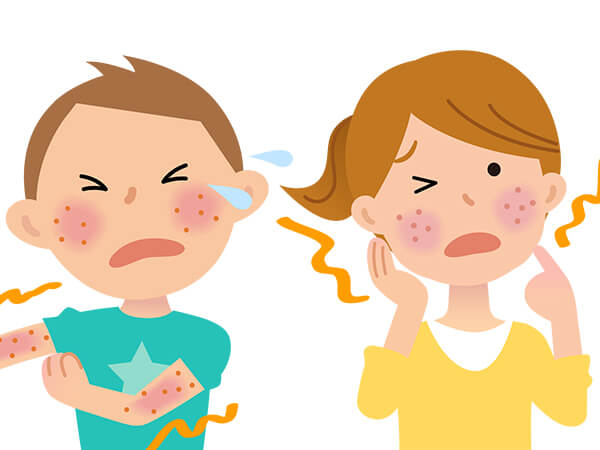 皮膚科・アレルギー科疾患